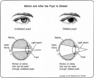 Dilated Pupil Diagram - Optometrist Toronto - Bay St. Eyecare